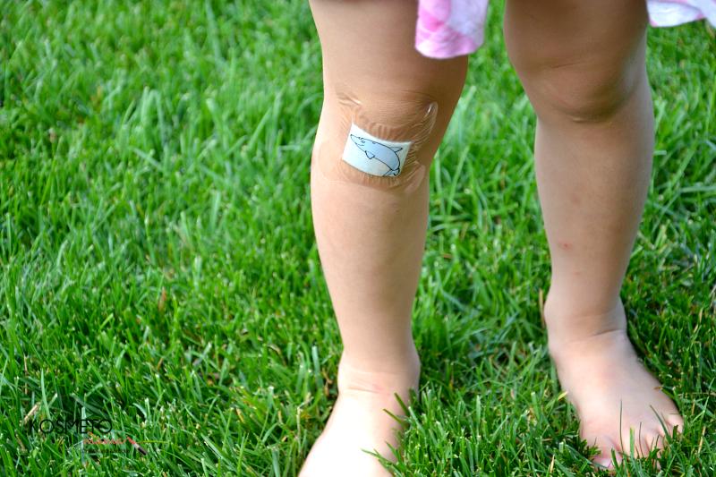 Plaster-na- łokcie -kolana - dla dzieci - DermaPlast- HARTMANN